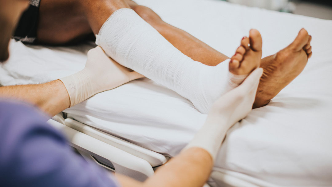 El drenaje linfático tras una fractura, ¿cómo puede ayudarte?